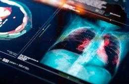 Medical MRI Scan on digital screen